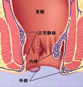 大连开发区肛肠医院